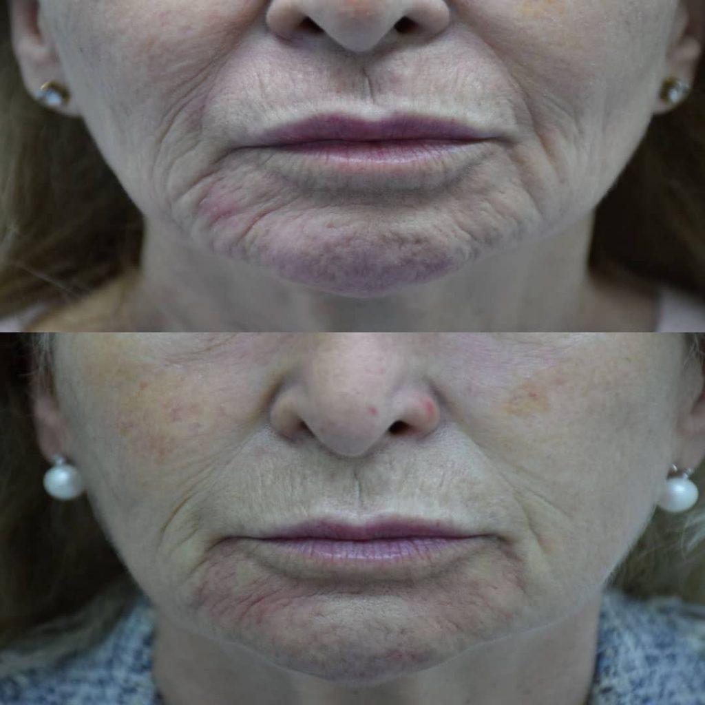efekat zatezanja kože pre i posle tretmana