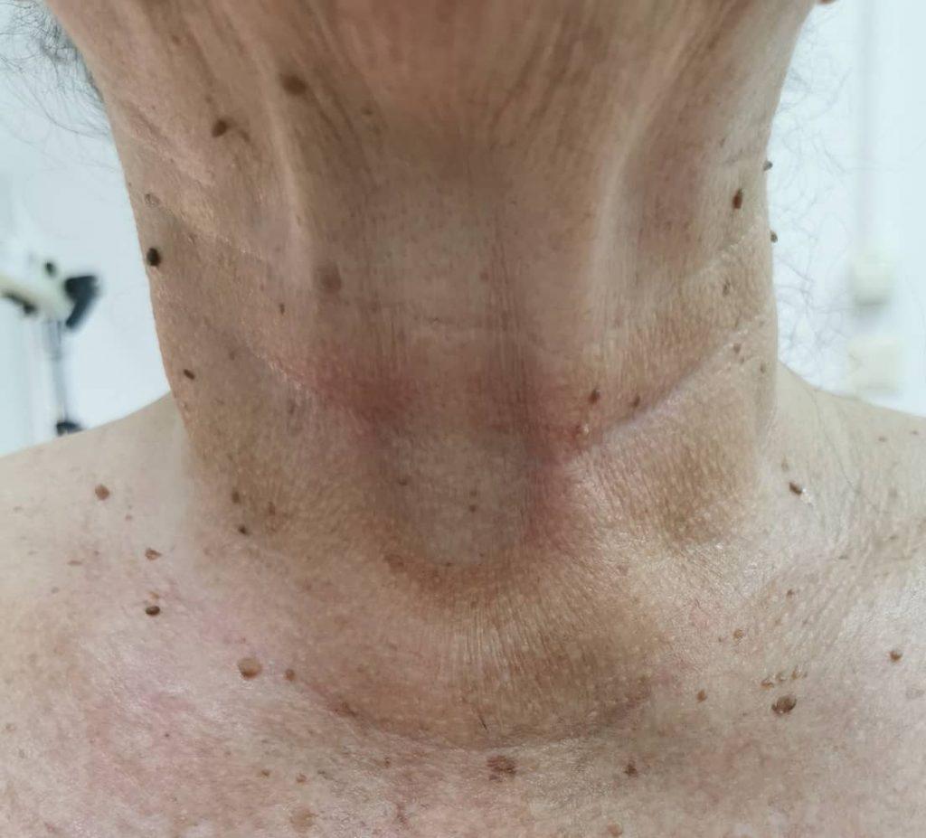 fibroni na vratu