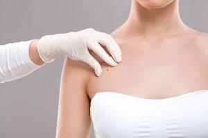 bolesti kože