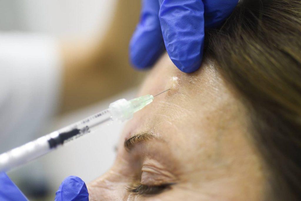 injekcija botoksa u čelo