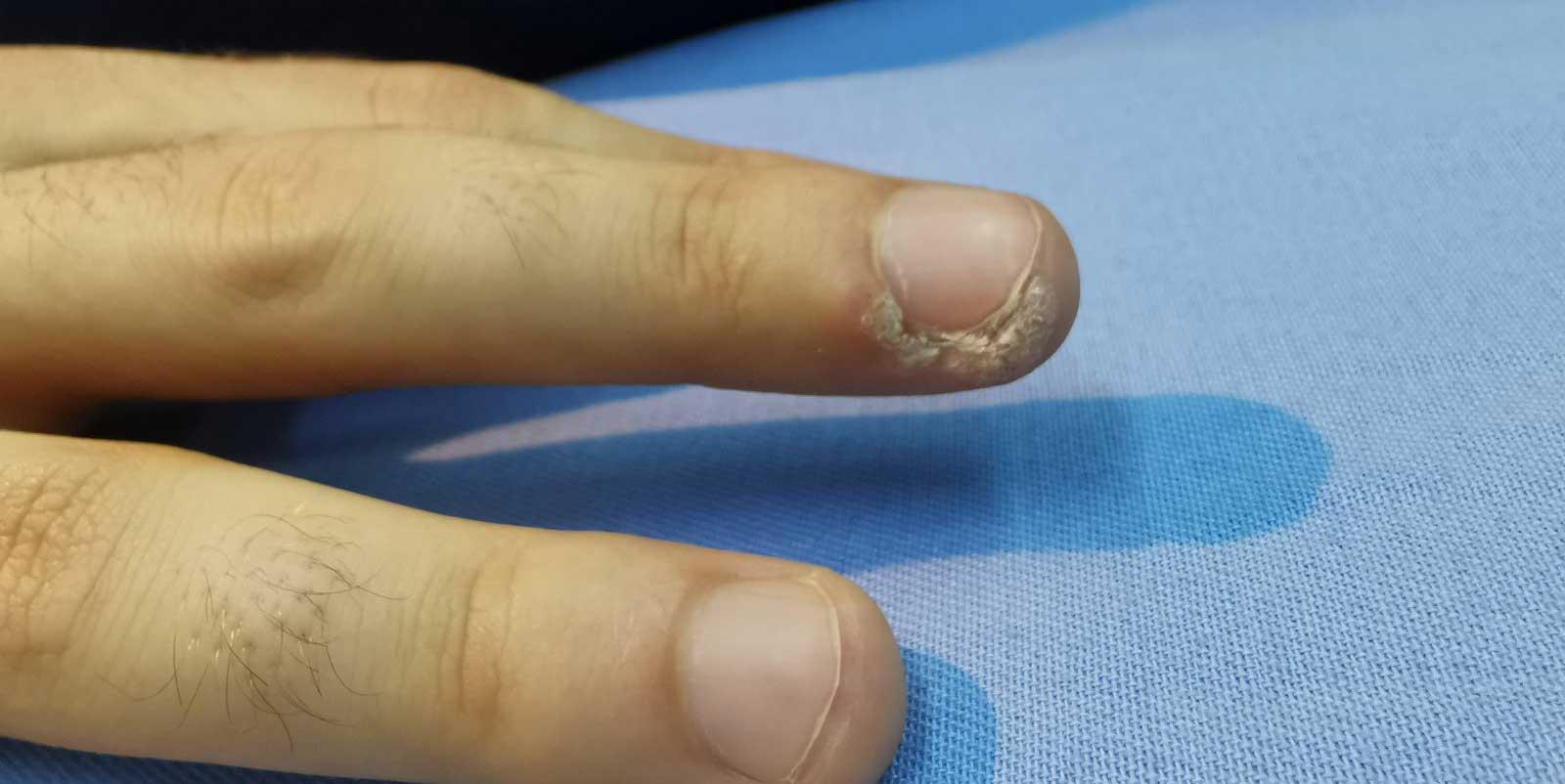 bradavica na prstu
