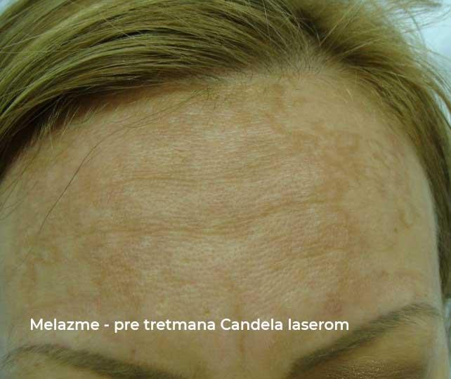 melazme pre i posle tretmana candela laserom