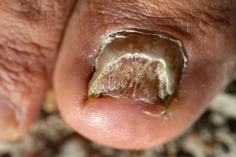 kandidijaza nokta izazvano gljivicom candidom