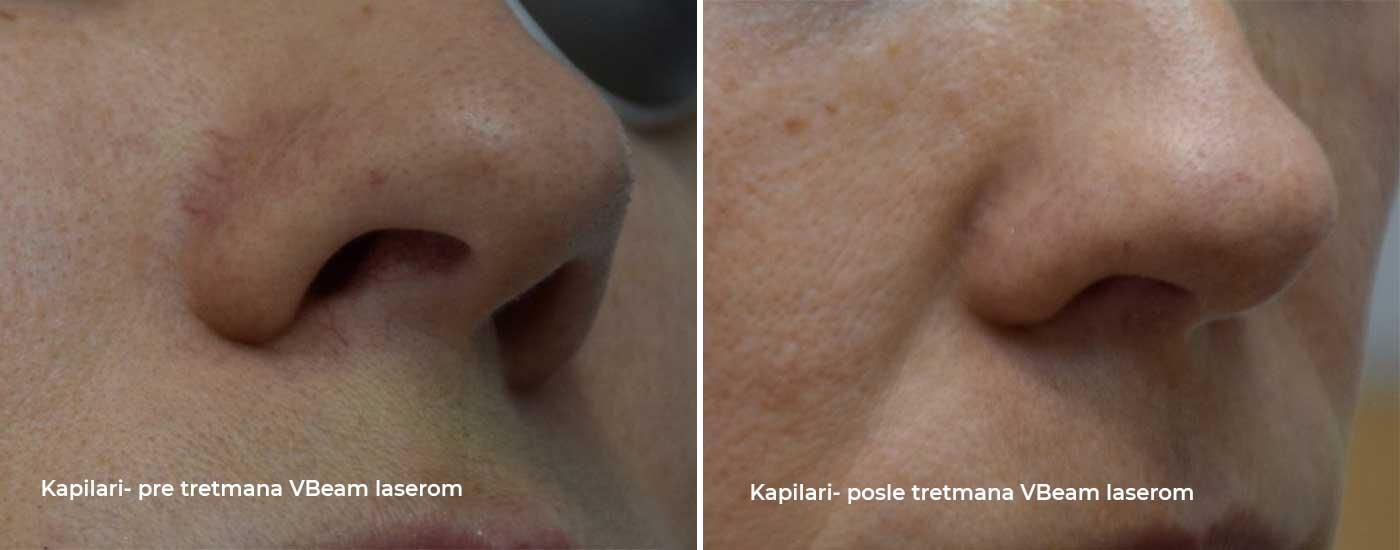 prošireni kapilari pre i posle terapije vbeam laserom