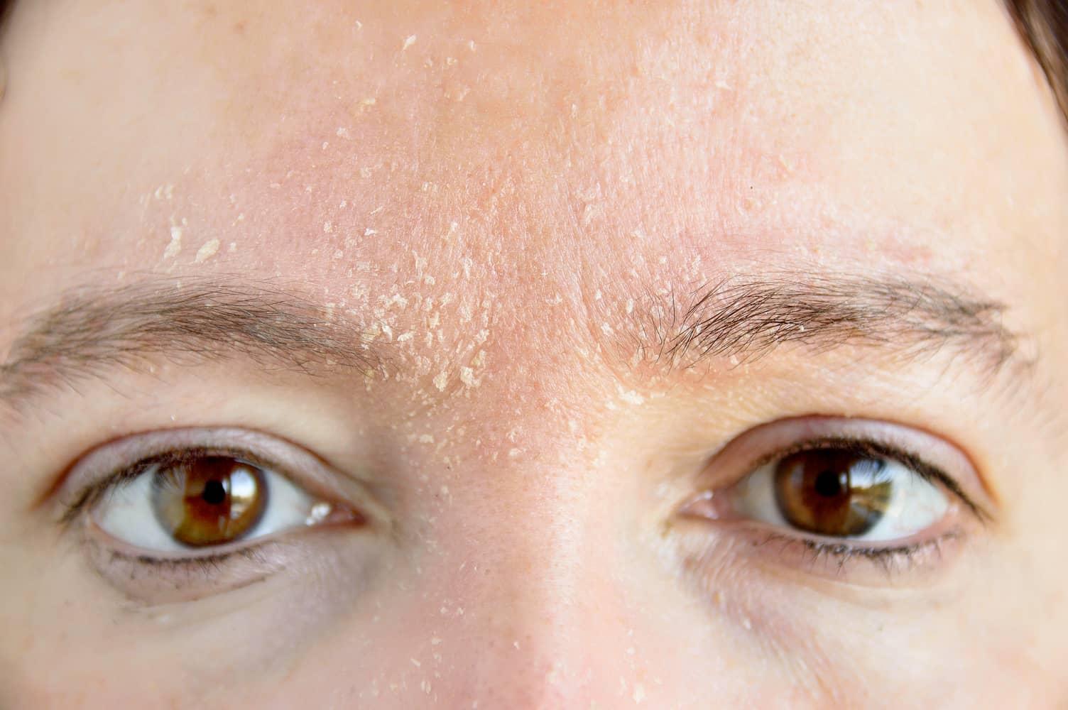 seboroični dermatitis na licu