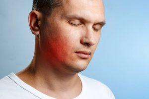 alergijska reakcija na hijaluron