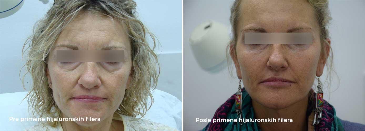 pre i posle primene hijaluronskih filera