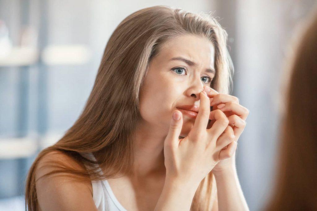 akne kod tinejdžera