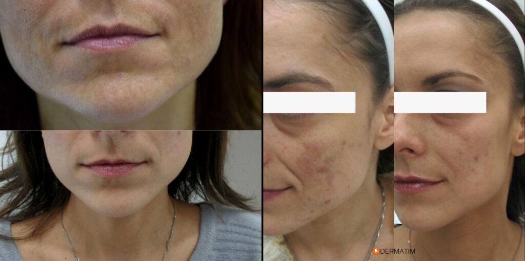 uklanjanje-pigmentacija-sa-lica-pre-posle-beograd